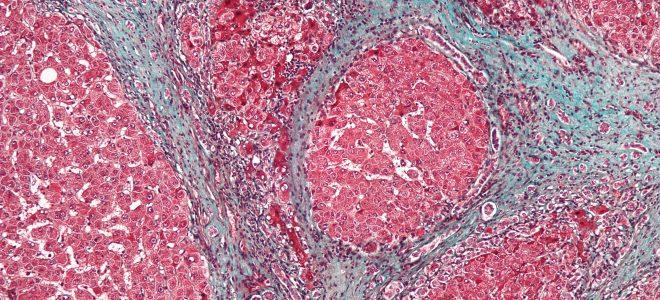 Симптомы и лечение билиарного цирроза печени
