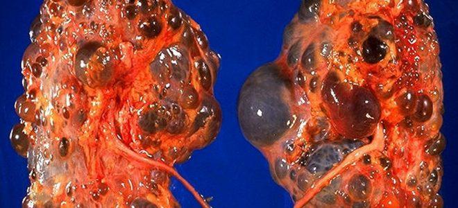 Цирроз печени в стадии декомпенсации