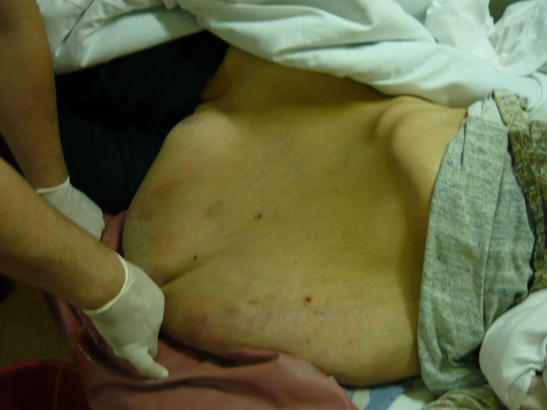 При циррозе печени возможна ли пересадка