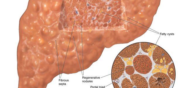 Лечение и профилактика криптогенного цирроза печени