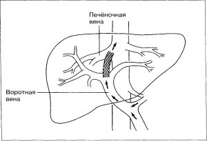 Печеночная энцефалопатия симптомы лечение