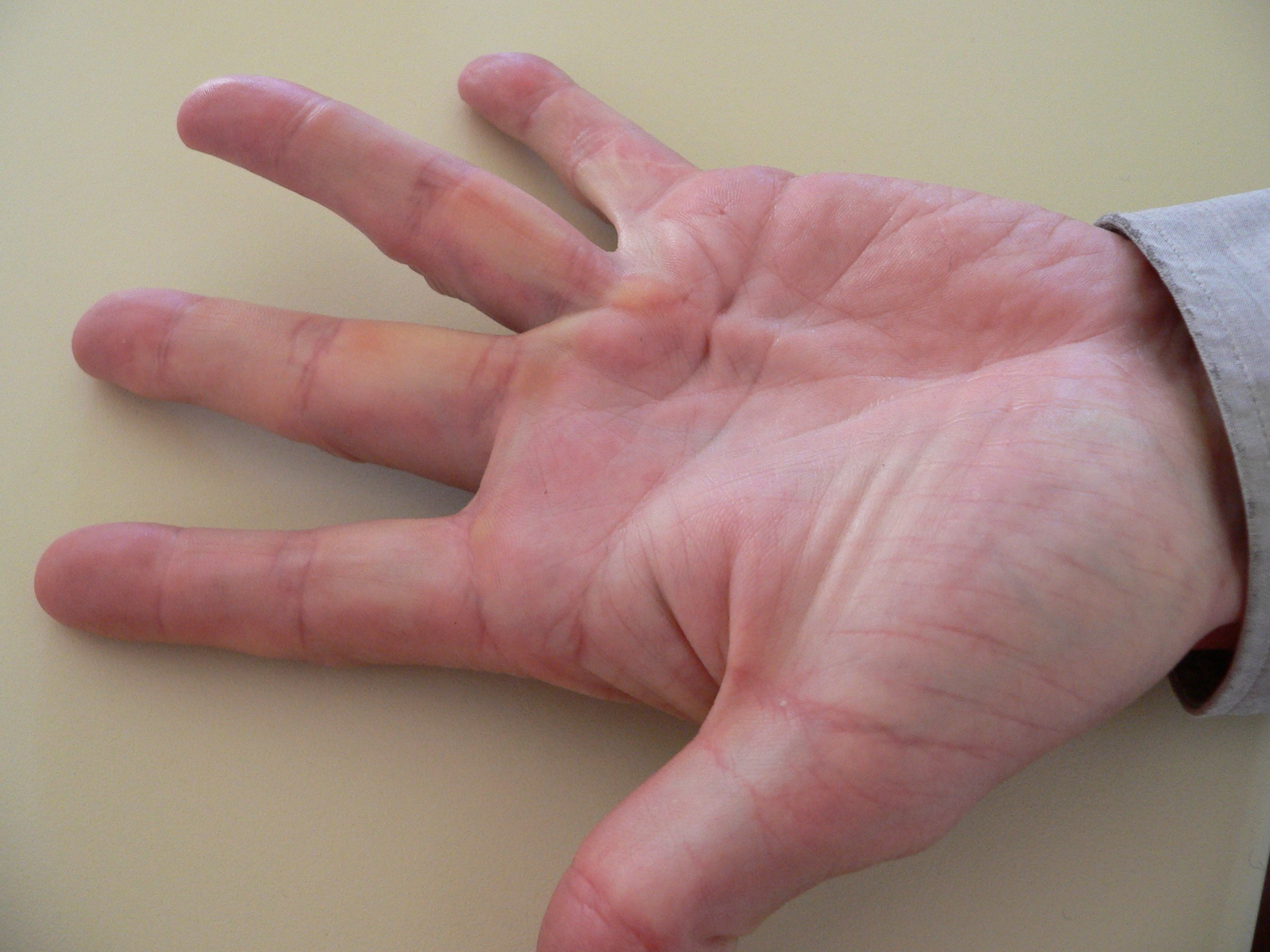 Симптомы и признаки цирроза печени у мужчин