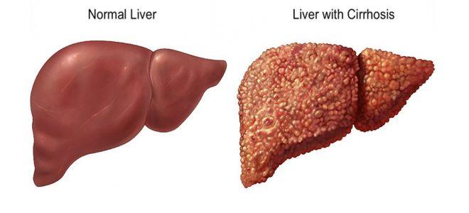 Лечение вторичного билиарного цирроза печени