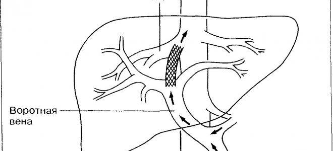 Система воротной вены печени