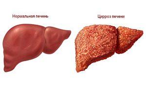 после гепатита диета