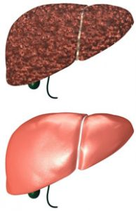 Гепатит б и алкоголь