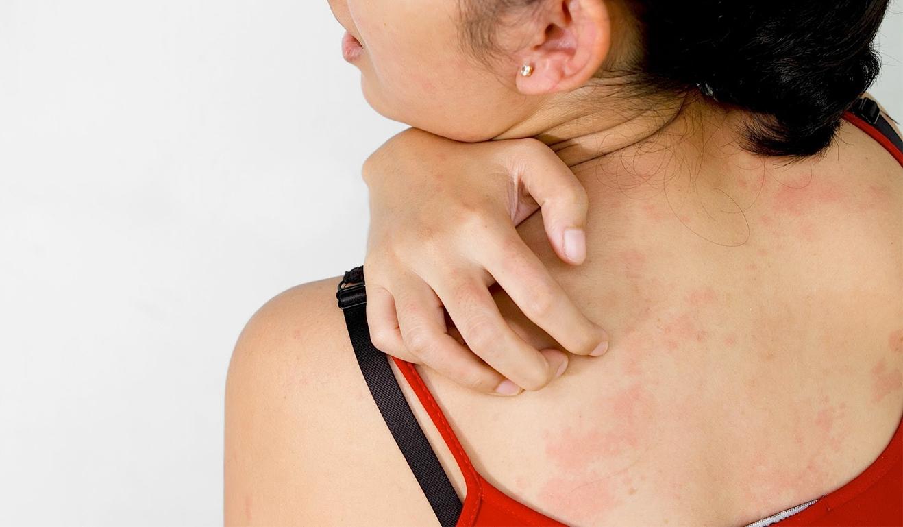 зуд при аллергии симптомы