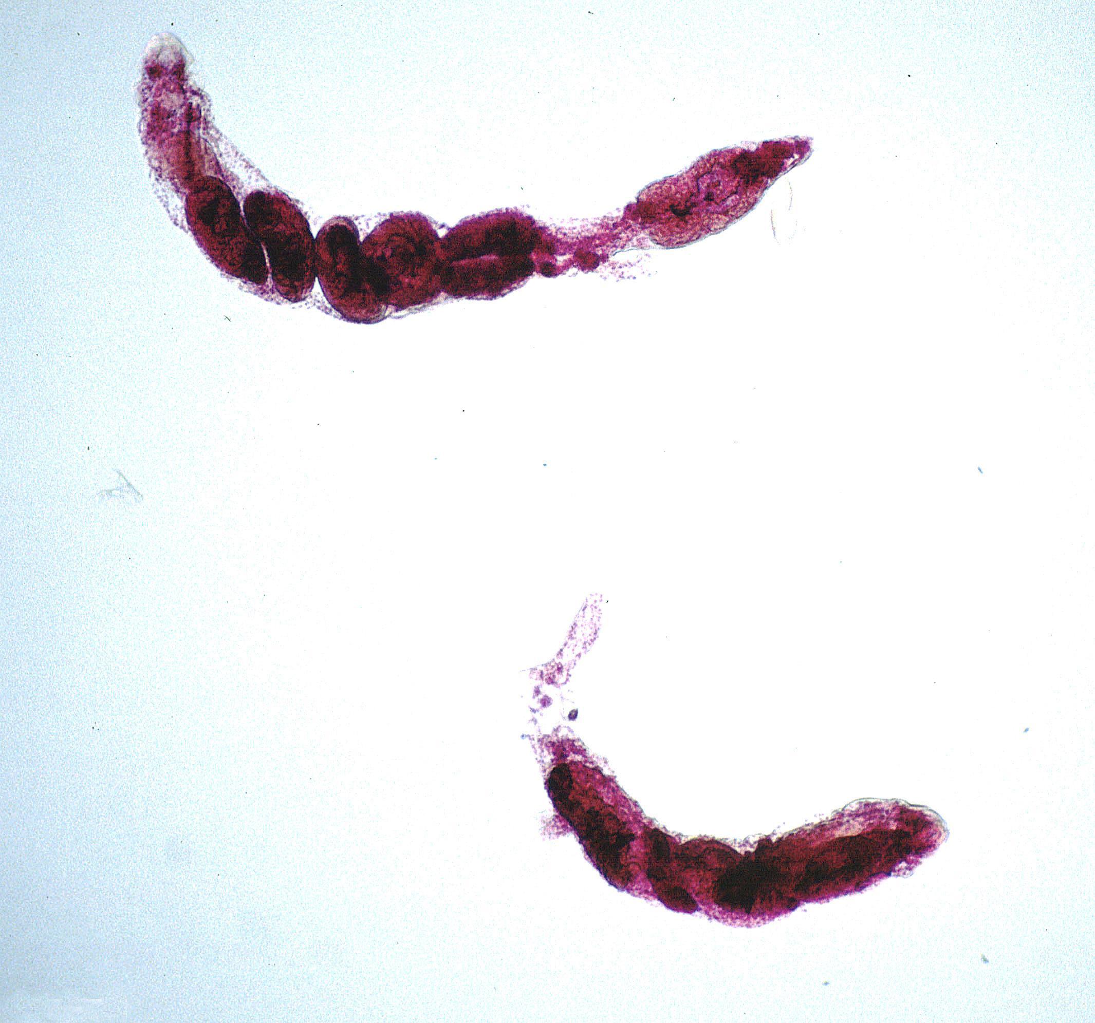 моллюск паразит человека