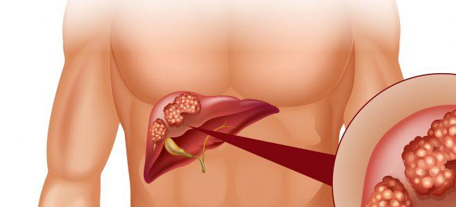 Рак печени 1, 2, 3, 4 стадии (степени): симптомы, лечение