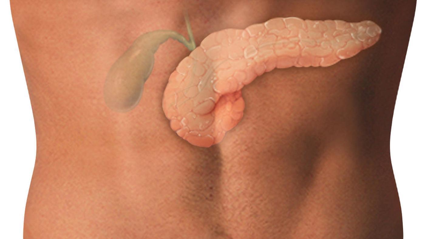 Поджелудочная железа: лечение 87