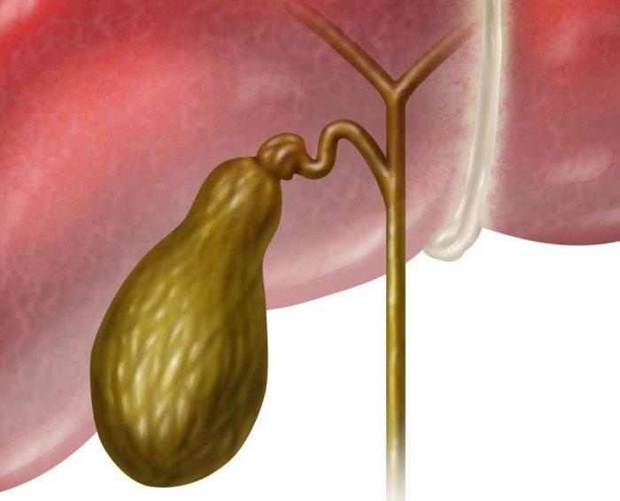 Вязкая желчь в желчном пузыре лечение – Лечим печень