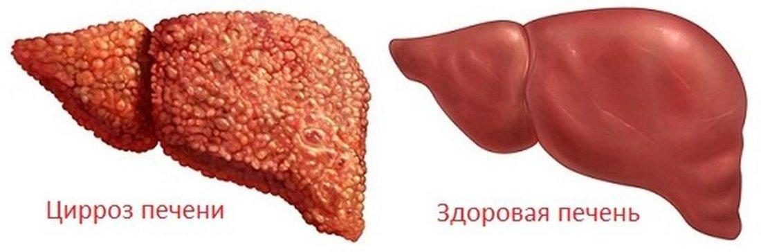 Анализы крови при заболевании печени расшифровка