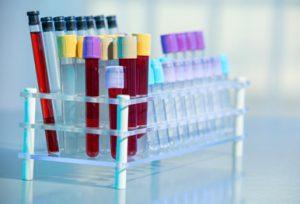 Гепатит в диагностика маркеры