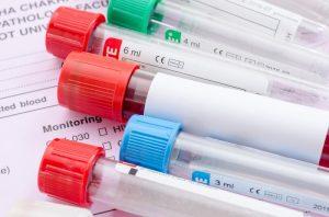 Гепатит б количественный анализ расшифровка