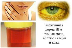 Симптомы и лечение гепатита А