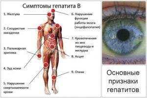 Хроническая форма гепатита В