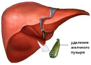 Операции на желчном пузыре