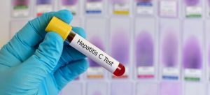 Вирусная нагрузка гепатита
